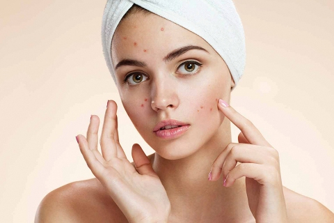 Best Acne & Pimples Spot Removal Creamin India
