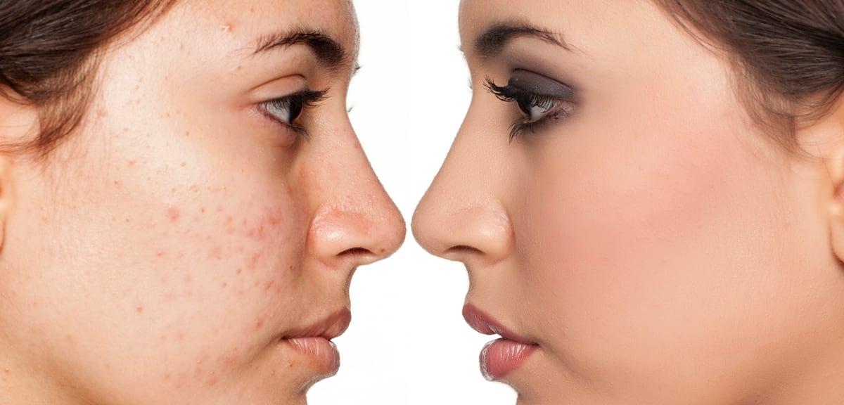 Best Acne & Pimples Gel in India – Cause, Symptoms Treatment & Precaution