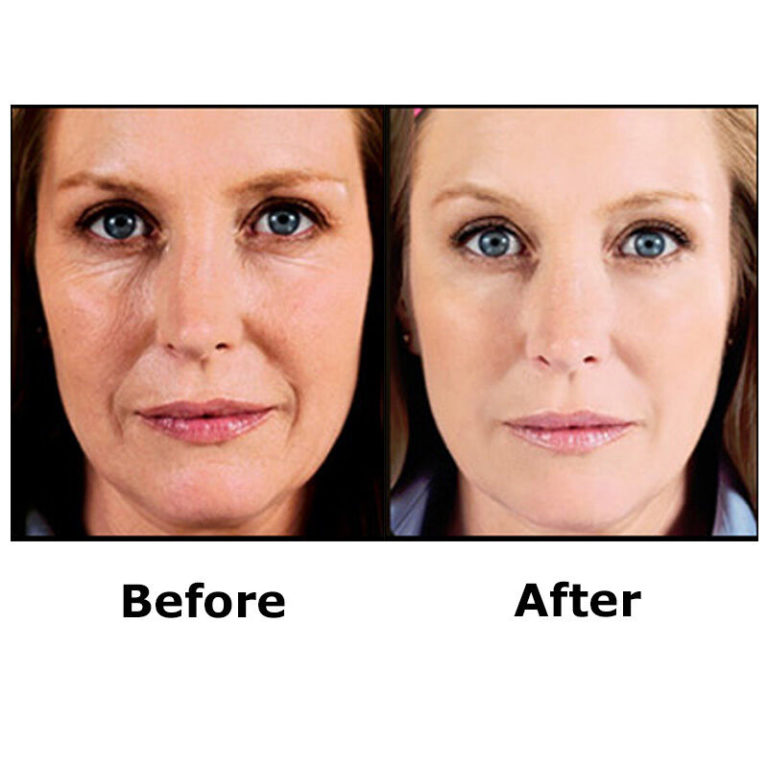 Top 6 Best Anti-Aging Product In India 2021